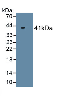 Monoclonal Antibody to Creatine Kinase, Muscle (CKM)