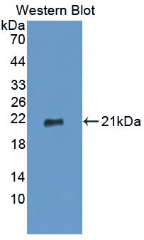 Monoclonal Antibody to Tumor Necrosis Factor Alpha (TNFa)
