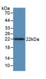 Monoclonal Antibody to Tumor Necrosis Factor Beta (TNFb)