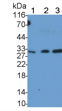 Monoclonal Antibody to Tumor Necrosis Factor Related Apoptosis Inducing Ligand (TRAIL)