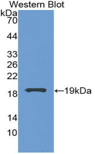Monoclonal Antibody to Vascular Endothelial Growth Factor A (VEGFA)