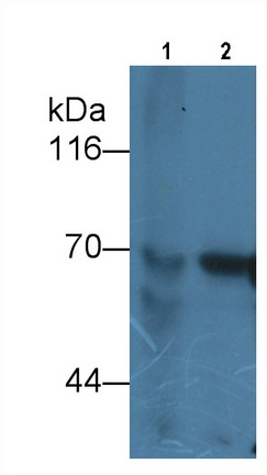 Monoclonal Antibody to Alpha-Fetoprotein (aFP)