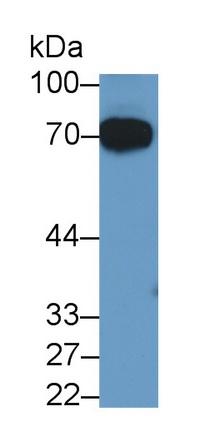 Monoclonal Antibody to Alpha 2-Antiplasmin (a2PI)
