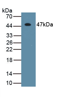 Monoclonal Antibody to Interferon Beta (IFNb)