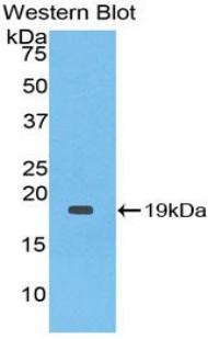 Monoclonal Antibody to Interleukin 1 Receptor Antagonist (IL1RA)