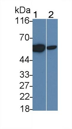 Monoclonal Antibody to Interleukin 2 Receptor Beta (IL2Rb)