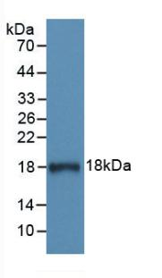 Monoclonal Antibody to Complement 1 Inhibitor (C1INH)