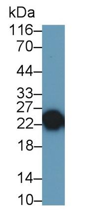 Monoclonal Antibody to Trypsin (TRY)