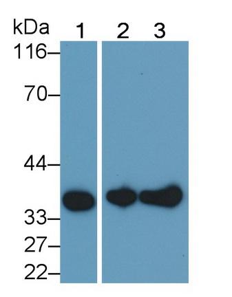 Monoclonal Antibody to Annexin V (ANXA5)