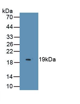 Monoclonal Antibody to Myelin Oligodendrocyte Glycoprotein (MOG)