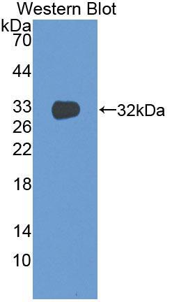 Monoclonal Antibody to Tissue Factor (TF)