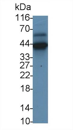 Monoclonal Antibody to Myelin Basic Protein (MBP)
