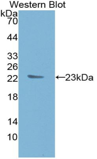 Monoclonal Antibody to Tissue Inhibitors Of Metalloproteinase 1 (TIMP1)