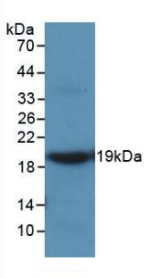 Monoclonal Antibody to Matrix Metalloproteinase 9 (MMP9)