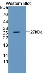 Monoclonal Antibody to Interleukin 1 Beta (IL1b)