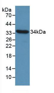 Monoclonal Antibody to Cyclin D1 (CCND1)