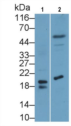 Monoclonal Antibody to Procalcitonin (PCT)