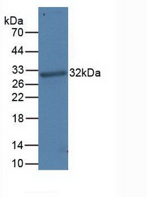 Monoclonal Antibody to Programmed Cell Death Protein 1 Ligand 1 (PDL1)