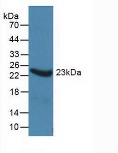 Monoclonal Antibody to Alpha-1-Acid Glycoprotein (a1AGP)