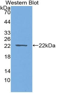 Monoclonal Antibody to Parathyroid Hormone Related Protein (PTHrP)