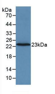 Monoclonal Antibody to Coagulation Factor II (F2)