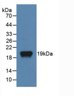 Monoclonal Antibody to Receptor Activator Of Nuclear Factor Kappa B Ligand (RANkL)