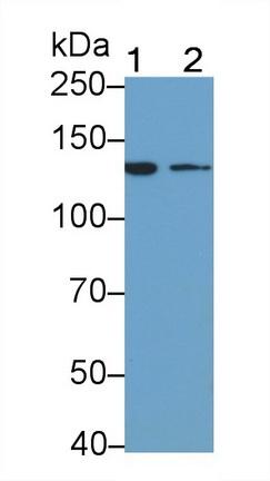 Monoclonal Antibody to Insulin Receptor (INSR)