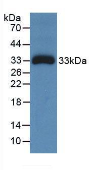 Monoclonal Antibody to Ceruloplasmin (CP)