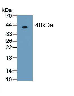 Monoclonal Antibody to Procollagen I N-Terminal Propeptide (PINP)