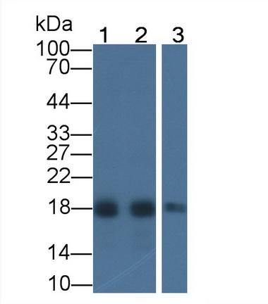 Monoclonal Antibody to Acid Phosphatase 1 (ACP1)