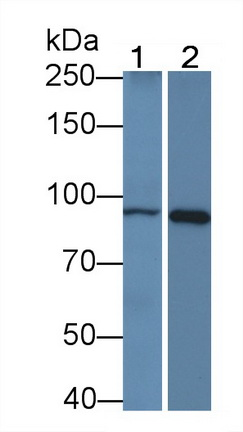 Monoclonal Antibody to Beta Catenin (β-catenin)