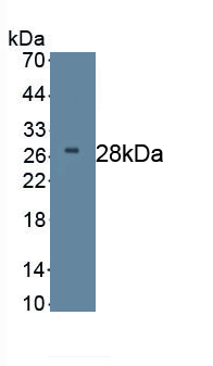 Monoclonal Antibody to Dickkopf Related Protein 2 (DKK2)