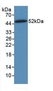 Monoclonal Antibody to Vimentin (VIM)