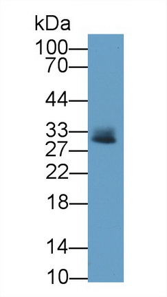 Monoclonal Antibody to Tryptase (TPS)