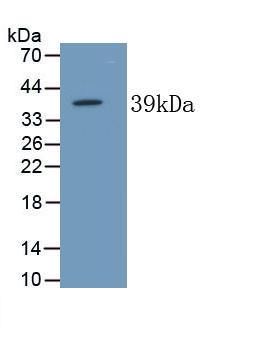 Monoclonal Antibody to Alkaline Phosphatase, Tissue-nonspecific (ALPL)