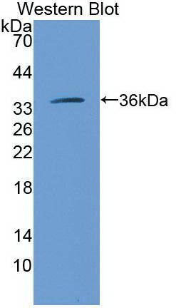 Monoclonal Antibody to Arginase (ARG)