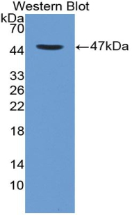 Monoclonal Antibody to Cluster Of Differentiation 4 (CD4)