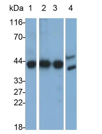 Monoclonal Antibody to Aspartate Aminotransferase (AST)