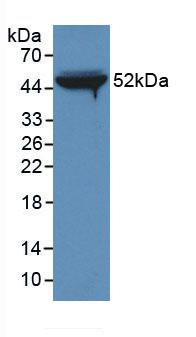 Monoclonal Antibody to Fibrinogen Beta Chain (FGB)
