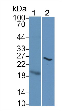 Monoclonal Antibody to Cytotoxic T-Lymphocyte Associated Antigen 4 (CTLA4)
