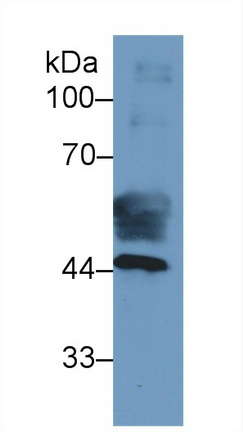 Monoclonal Antibody to Cytokeratin 19 (CK19)