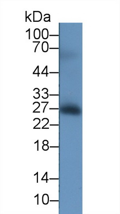 Monoclonal Antibody to Tumor Necrosis Factor Receptor Superfamily, Member 5 (CD40)