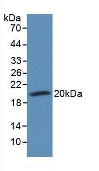 Monoclonal Antibody to Protectin (CD59)