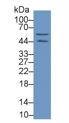 Monoclonal Antibody to Actin Beta (ACTb)
