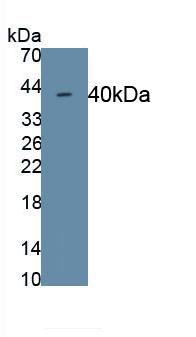 Monoclonal Antibody to Cadherin 5 (CDH5)