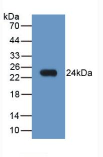 Monoclonal Antibody to Neutrophil Gelatinase Associated Lipocalin (NGAL)