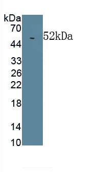 Monoclonal Antibody to Lipopolysaccharide Binding Protein (LBP)