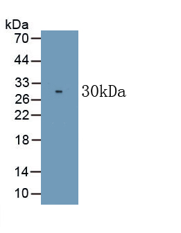 Monoclonal Antibody to Cluster Of Differentiation 226 (CD226)