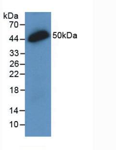 Monoclonal Antibody to Interleukin 28A (IL28A)