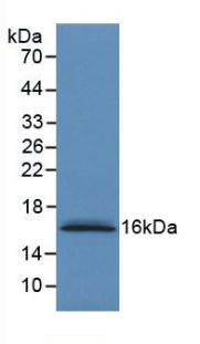 Monoclonal Antibody to S100 Calcium Binding Protein A6 (S100A6)